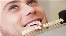 تفاوت بین روکش دندان و لمینت دندان