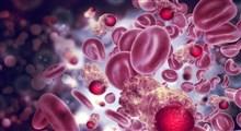 از علت تا درمان لوسمی میلوئید مزمن