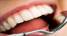 نوشیدنی و مواد غذایی مضر برای دندان