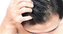 از علت تا درمان خشکی پوست سر