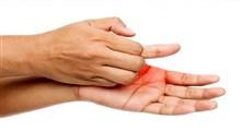 از علت تا درمان خارش کف دست