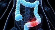 از علت تا درمان سرطان کولورکتال یا سرطان روده بزرگ