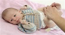 علت سبز و کف دار بودن مدفوع نوزادانی که با شیر مادر تغذیه می شوند