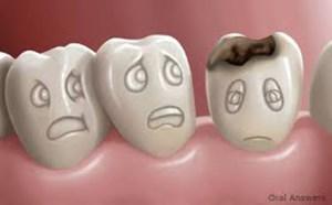 آیا میتوان پوسیدگی دندان را معکوس ساخت؟