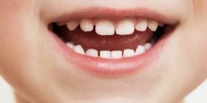 چگونه از دندان شیری کودکان مراقبت کنیم؟