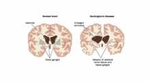 آنچه لازم است درباره بیماری هانتینگتون بدانید