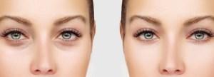 عمل بلفاروپلاستی: افراد مناسب و نامناسب برای انجام عمل زیبایی پلک