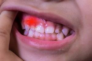 اختلالات دهانی در کودکان