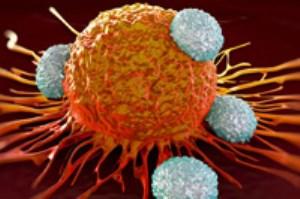 با علائم و نشانه های بیماری سرطان آشنا شوید