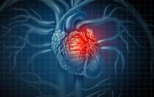 حمله قلبی، دلایل و راههای پیشگیری از آن (بخش دوم)