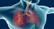 علائم، تشخیص و درمان عفونت ریه