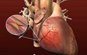 بیماری قلبی کرونریCHD (بخش اول)