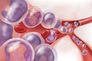 همه آنچه که از سرطان خون باید بدانید (بخش دوم)