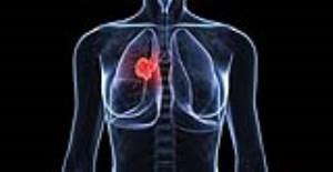 علائم سرطان ریه که باید به آنان توجه کرد (بخش دوم)