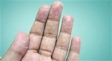 ناراحتی های پوستی از دیدگاه طب سنتی