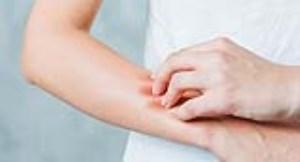 علل اصلی خارش بدن (بخش سوم)