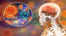 تأثیر کرونا بر مغز
