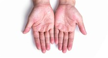 نکاتی برای حفظ سلامت دست ها در روزهای پر شست و شوی کرونایی
