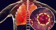 انواع عفونت تنفسی و روش های مقابله با آن (بخش اول)