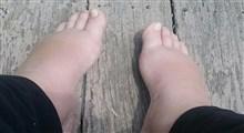 ورم پا در بارداری، علت و درمان آن