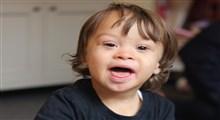 آشنایی با دلایل تولد کودک عقب مانده