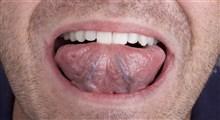 سرطان زبان، علائم، تشخیص و درمان آن (بخش سوم)