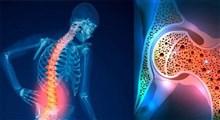 تقویت استخوان در روزهای کم تحرک