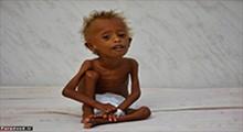 مظلومیت کودکان یمن را دریاب!