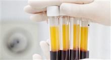 تاثیر پلاسما درمانی در بهبود بیماران کرونایی / ایران دومین کشوری که پلاسما درمانی را آغاز کرد