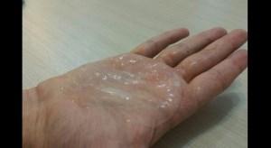 تولید زخمپوشی برای التیام زخمهای دیابتی و سوختگی توسط محققان کشور