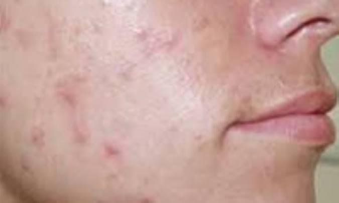 بهترین آنتی بیوتیک برای جوش صورت