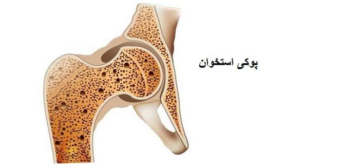 علل و درمان پوکی استخوان