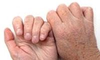 مشکلات پوستی سالمندان