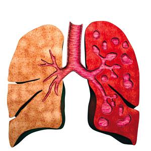 آشنايي با ريه و دستگاه تنفس