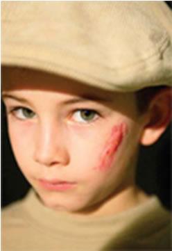 با جای زخم روی صورتمان چه کنیم؟