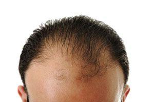 ریزش مو کمبود کدام ویتامین