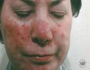 لکههای قرمز روی پوست