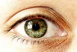 رنگهای نادر چشم
